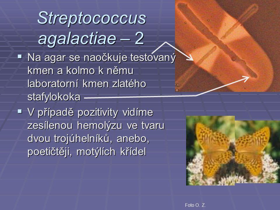 Streptococcus agalactiae – 2  Na agar se naočkuje testovaný kmen a kolmo k němu laboratorní kmen zlatého stafylokoka  V případě pozitivity vidíme zesílenou hemolýzu ve tvaru dvou trojúhelníků, anebo, poetičtěji, motýlích křídel Foto O.