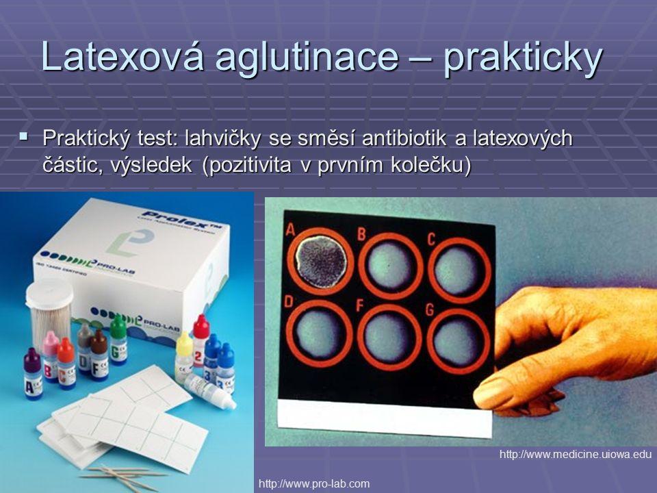 Latexová aglutinace – prakticky  Praktický test: lahvičky se směsí antibiotik a latexových částic, výsledek (pozitivita v prvním kolečku) http://www.pro-lab.com http://www.medicine.uiowa.edu