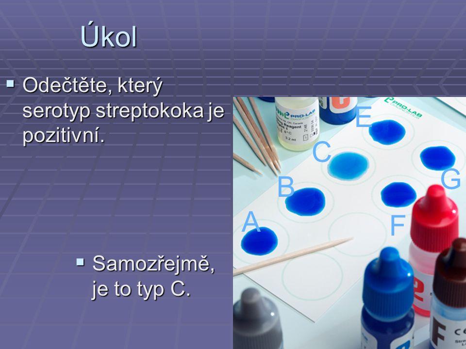 Úkol  Odečtěte, který serotyp streptokoka je pozitivní. A B C E F G  Samozřejmě, je to typ C.