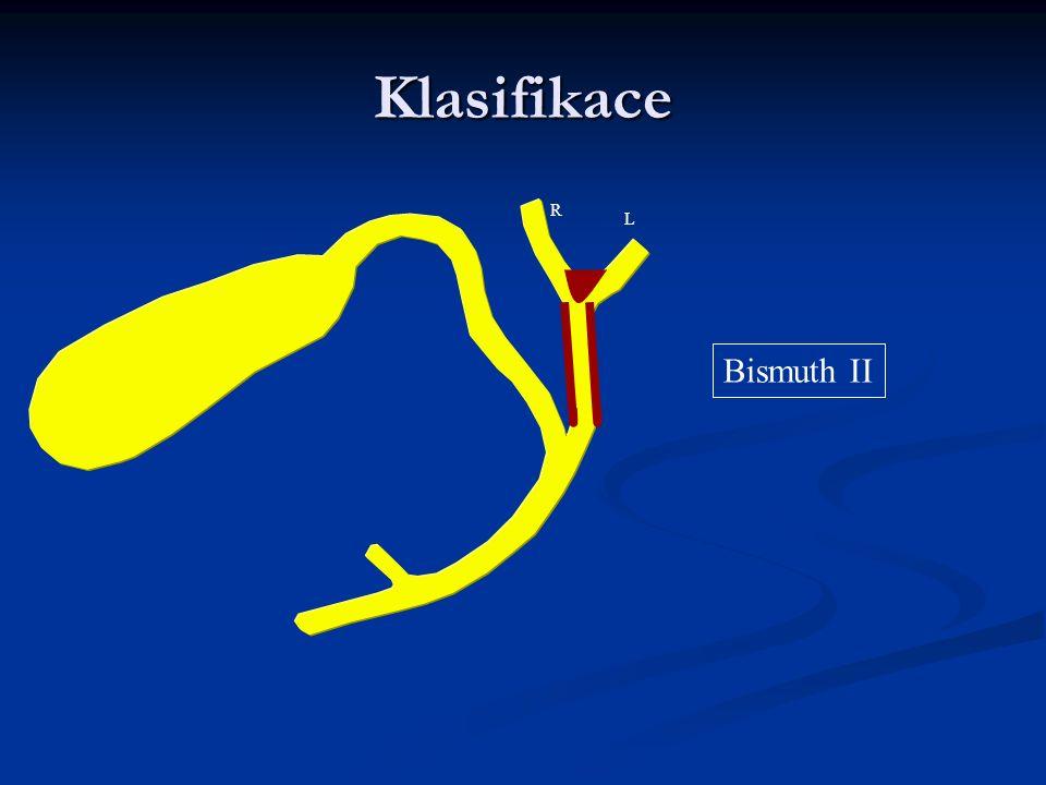 Klasifikace Bismuth II R L