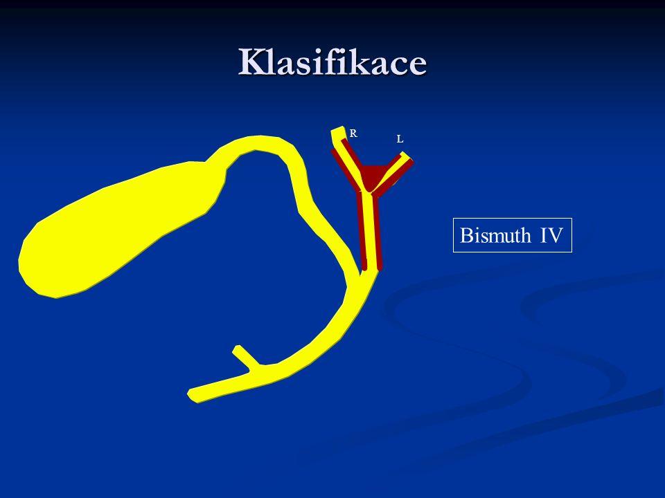 Klasifikace Bismuth IV R L