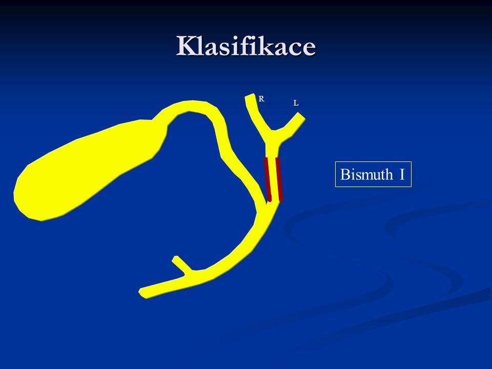 Klasifikace Bismuth I R L