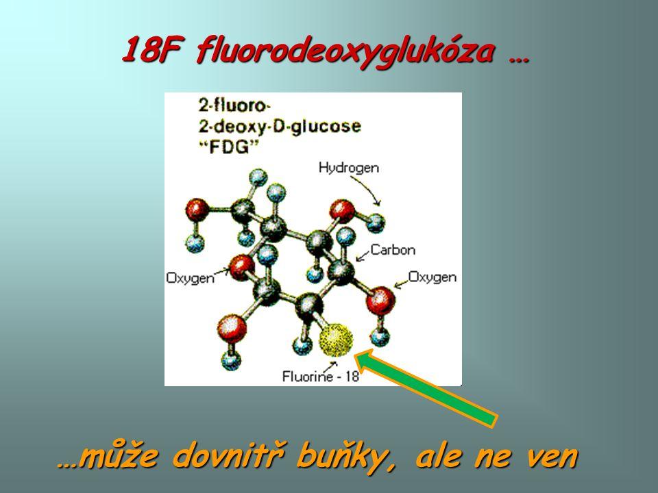 18F fluorodeoxyglukóza … …může dovnitř buňky, ale ne ven