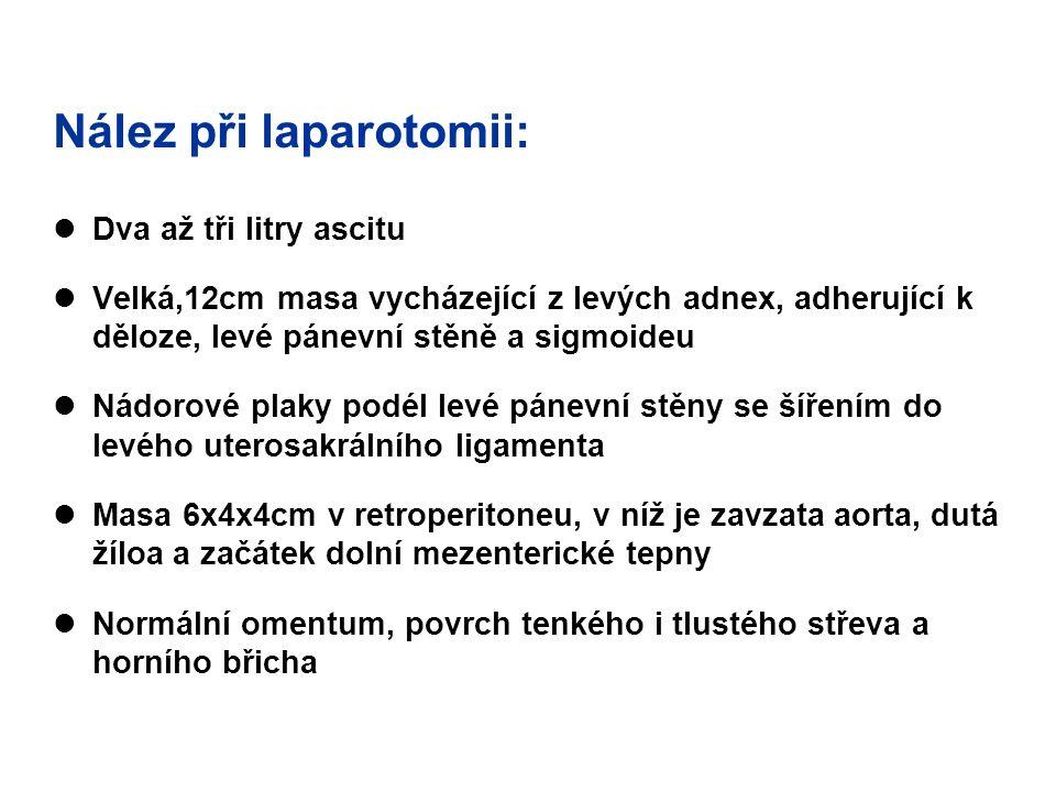 Nález při laparotomii: Dva až tři litry ascitu Velká,12cm masa vycházející z levých adnex, adherující k děloze, levé pánevní stěně a sigmoideu Nádorov