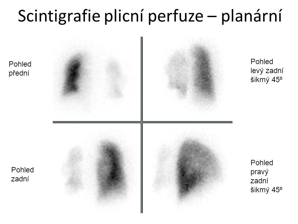 Scintigrafie plicní perfuze – planární Pohled přední Pohled zadní Pohled pravý zadní šikmý 45º Pohled levý zadní šikmý 45º