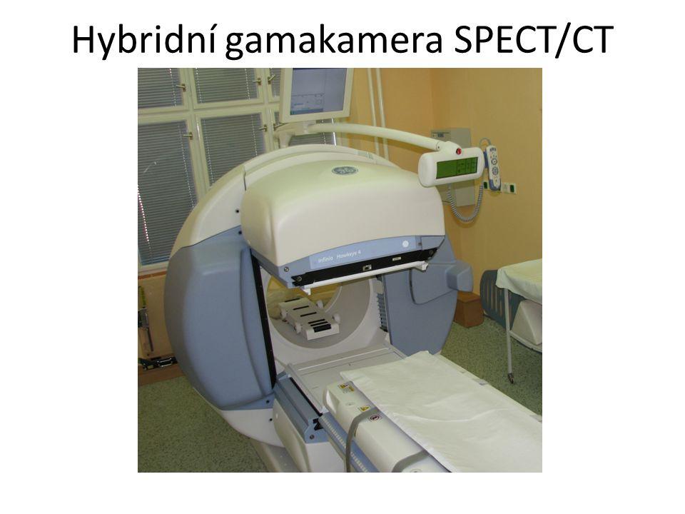 Hybridní gamakamera SPECT/CT