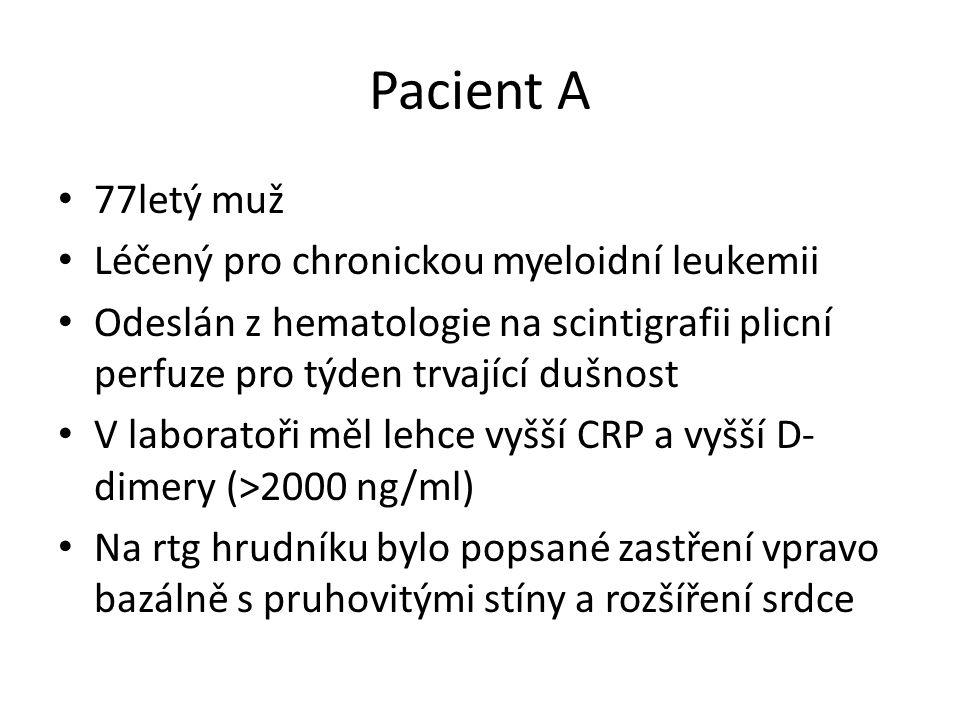 Pacient A 77letý muž Léčený pro chronickou myeloidní leukemii Odeslán z hematologie na scintigrafii plicní perfuze pro týden trvající dušnost V laboratoři měl lehce vyšší CRP a vyšší D- dimery (>2000 ng/ml) Na rtg hrudníku bylo popsané zastření vpravo bazálně s pruhovitými stíny a rozšíření srdce