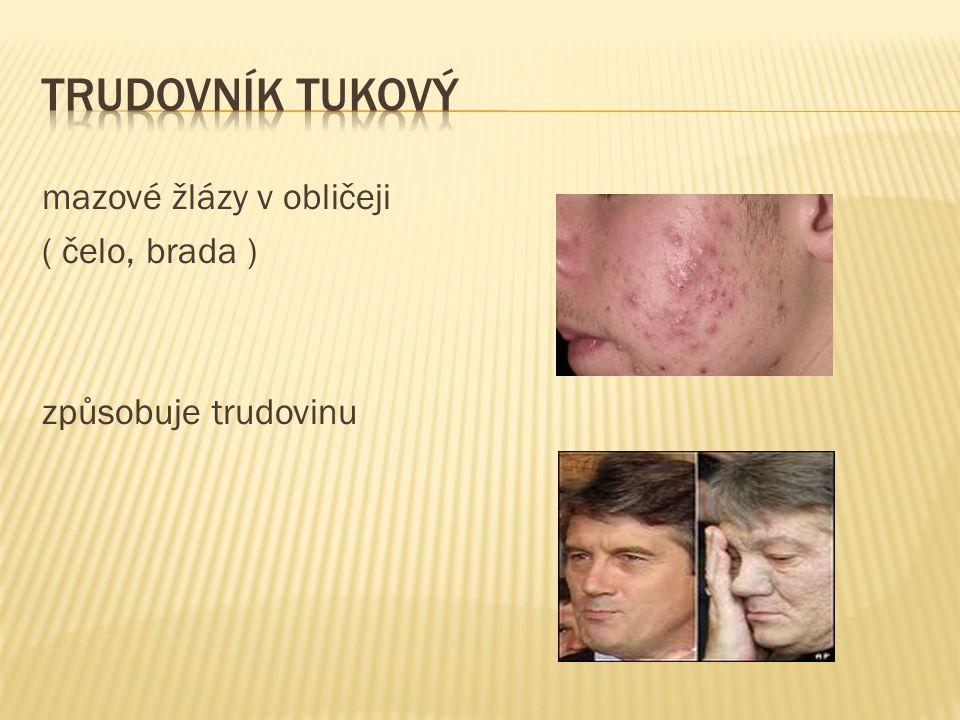 mazové žlázy v obličeji ( čelo, brada ) způsobuje trudovinu