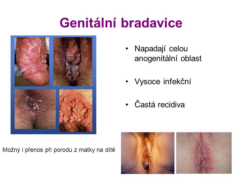 Genitální bradavice Napadají celou anogenitální oblast Vysoce infekční Častá recidiva Možný i přenos při porodu z matky na dítě