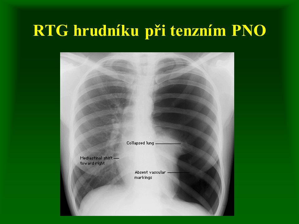 RTG hrudníku při tenzním PNO