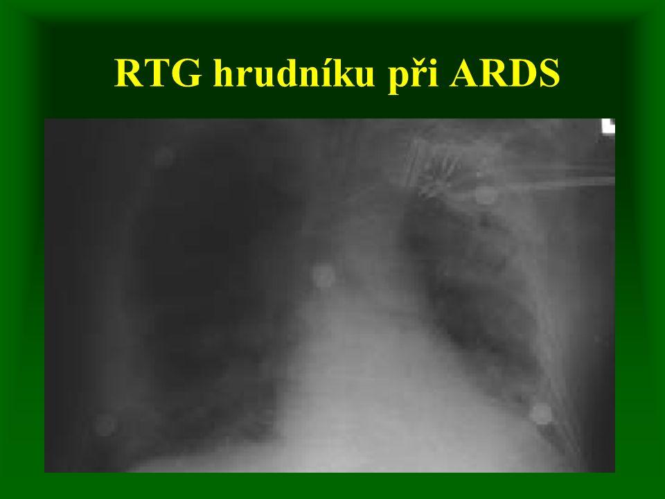 RTG hrudníku při ARDS