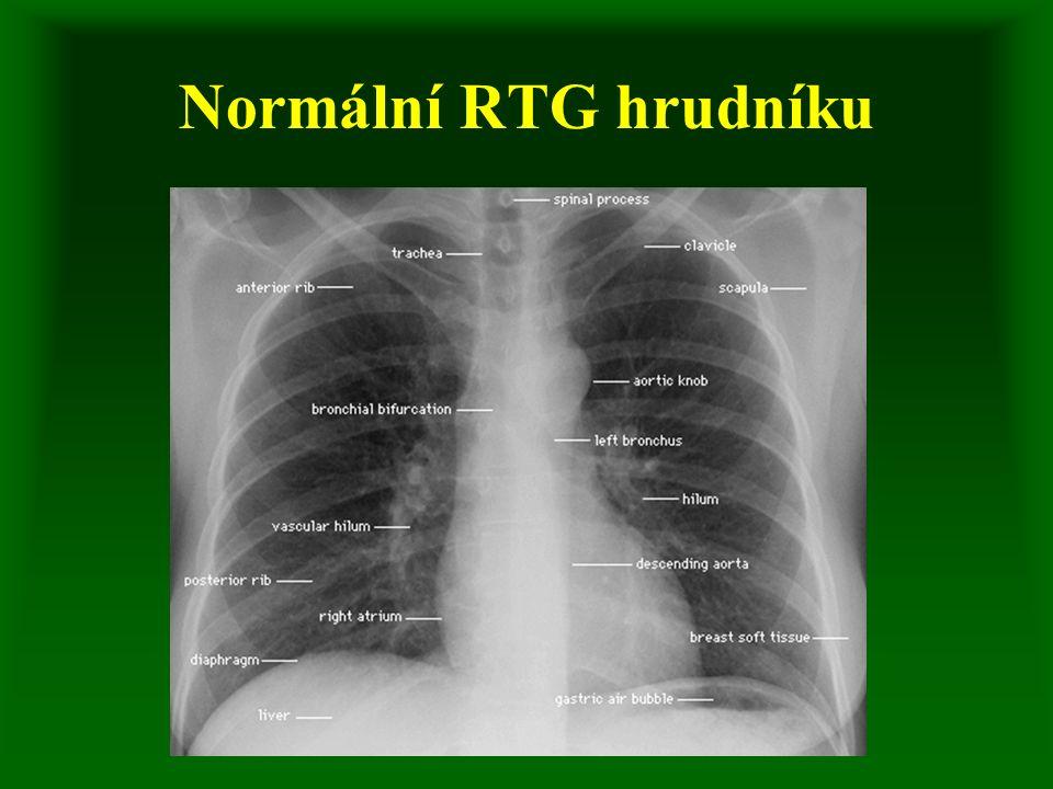 Krvácení z dýchacích cest definice - hemoptýza - příměs krve ve sputu, hemoptoe - chrlení krve etiologie - bronchogenní Ca plic, bronchiektázie, absces, TBC, embolizace diagnostika - vyloučení jiného krvácení, Ko, koagulace, KS, Astrup, RTG, bronchoskopie event.