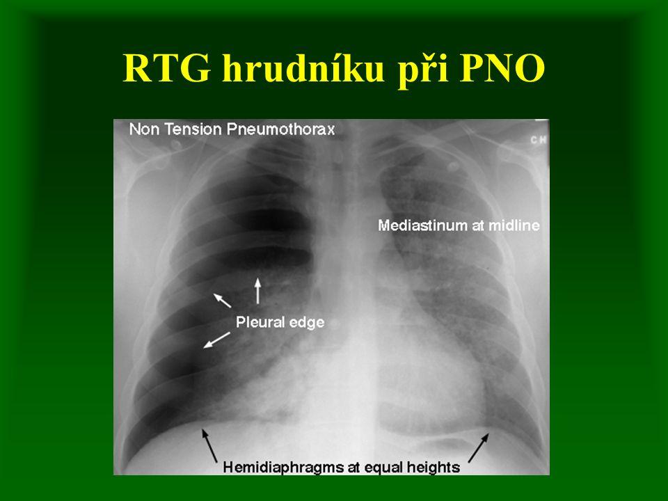 RTG hrudníku při PNO