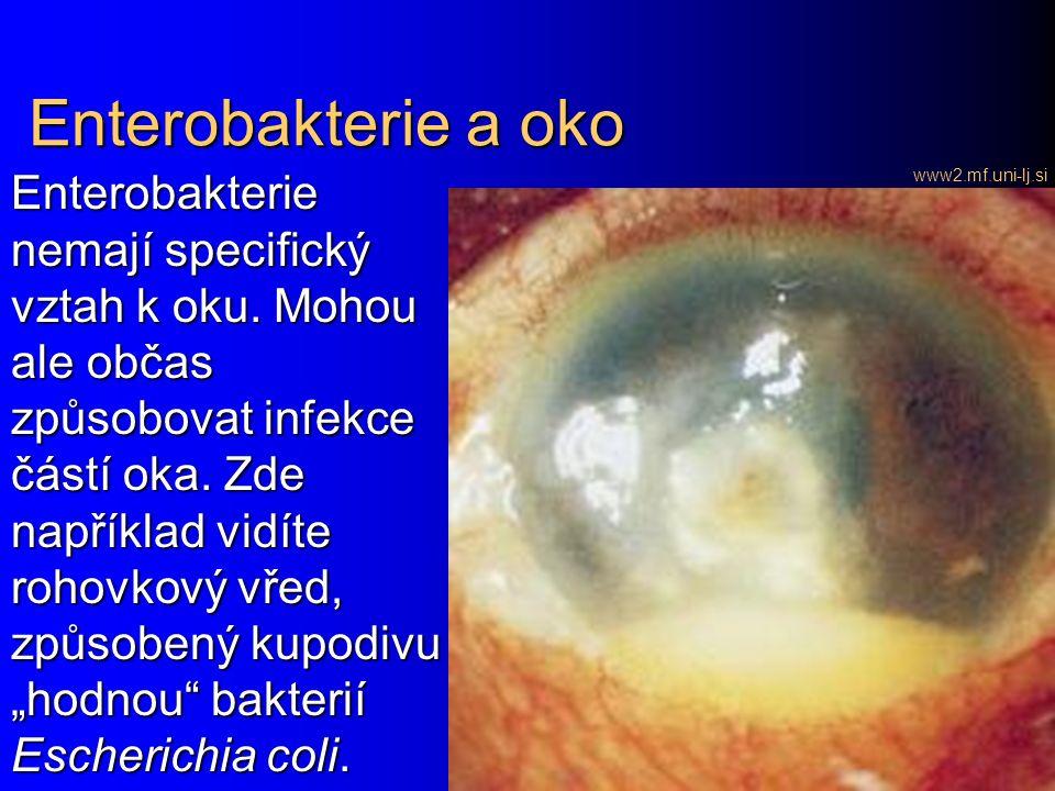Enterobakterie a oko www2.mf.uni-lj.si Enterobakterie nemají specifický vztah k oku.