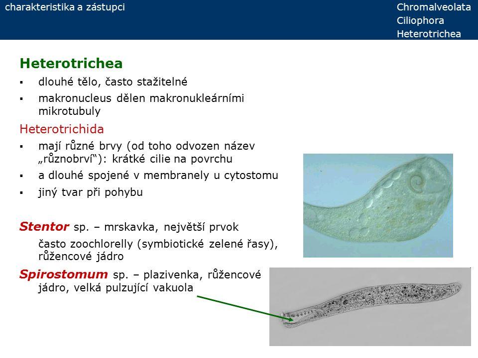 Heterotrichea  dlouhé tělo, často stažitelné  makronucleus dělen makronukleárními mikrotubuly Heterotrichida  mají různé brvy (od toho odvozen náze