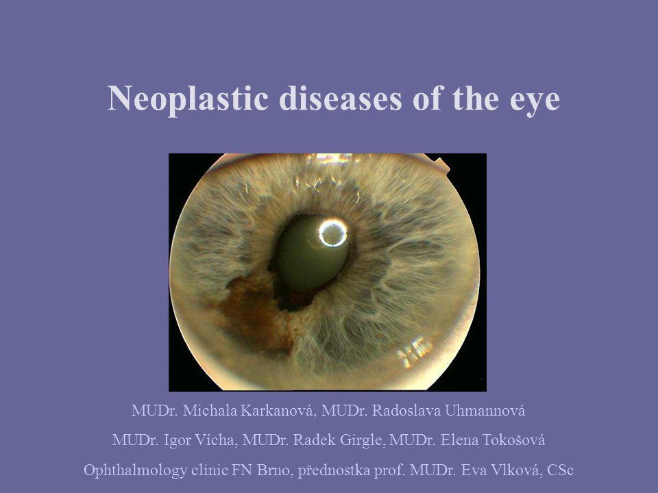 Neoplastic diseases of the eye MUDr. Michala Karkanová, MUDr.