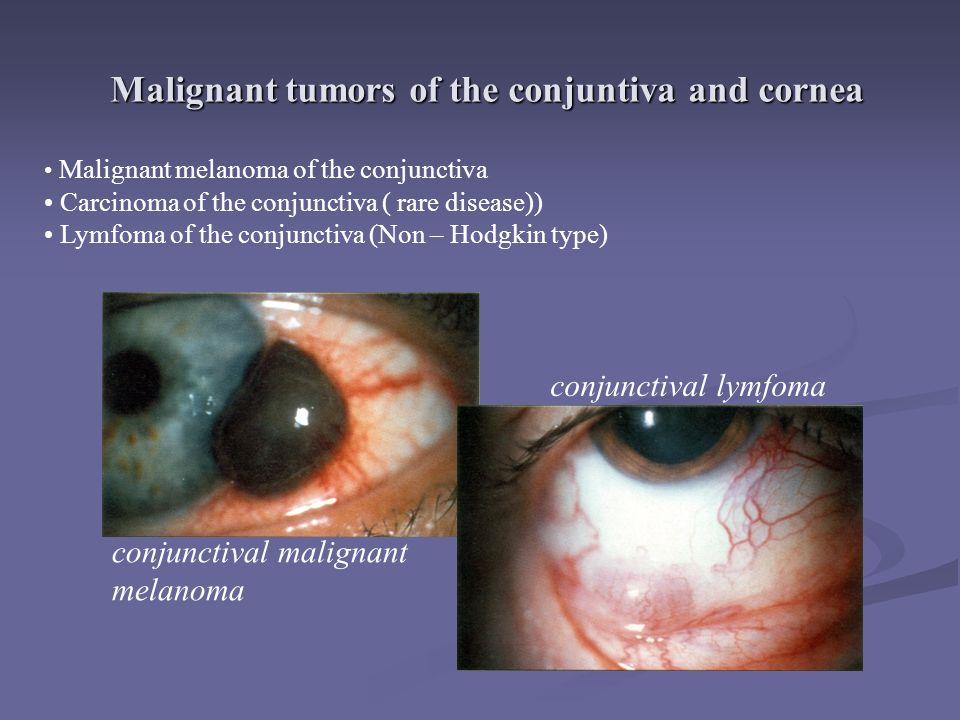 Malignant tumors of the conjuntiva and cornea Malignant melanoma of the conjunctiva Carcinoma of the conjunctiva ( rare disease)) Lymfoma of the conjunctiva (Non – Hodgkin type) conjunctival malignant melanoma conjunctival lymfoma