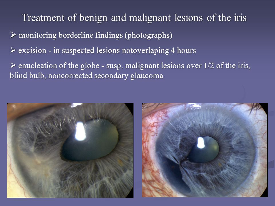 Treatment of benign and malignant lesions of the iris  monitoring borderline findings (photographs)  excision - in suspected lesions notoverlaping 4