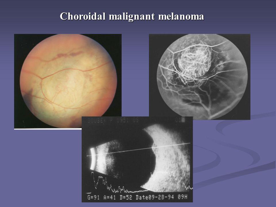 Choroidal malignant melanoma