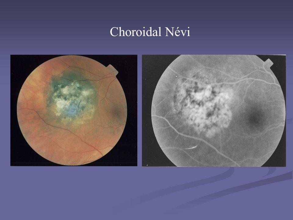 Choroidal Névi