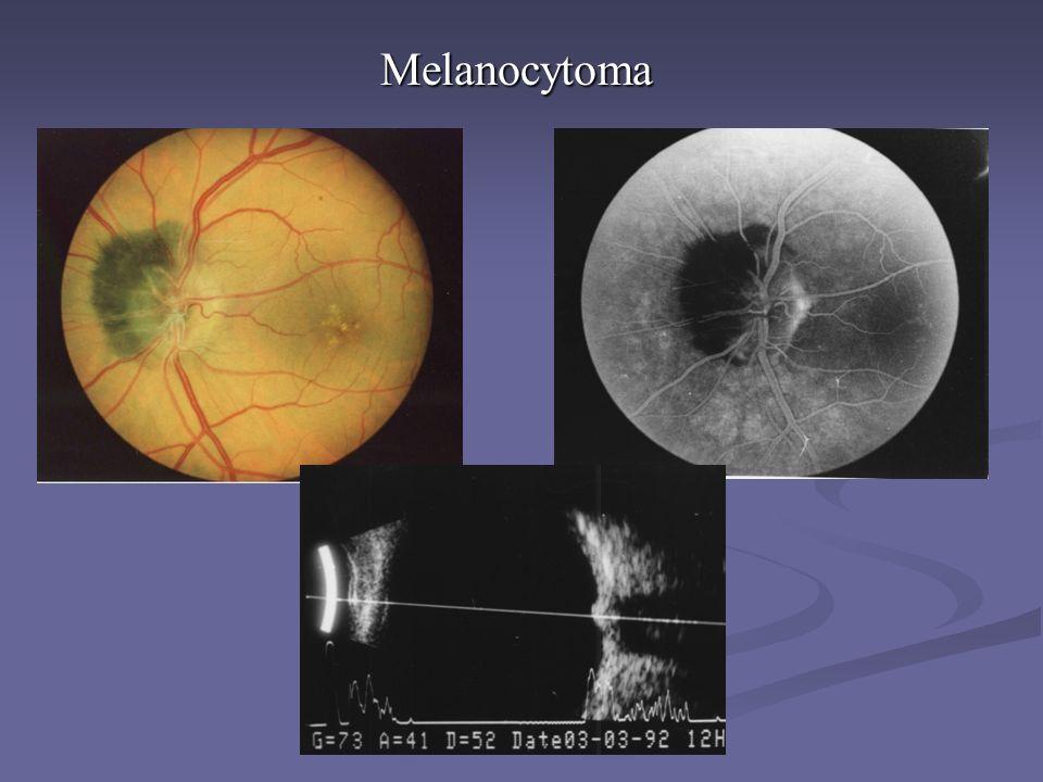 Melanocytoma