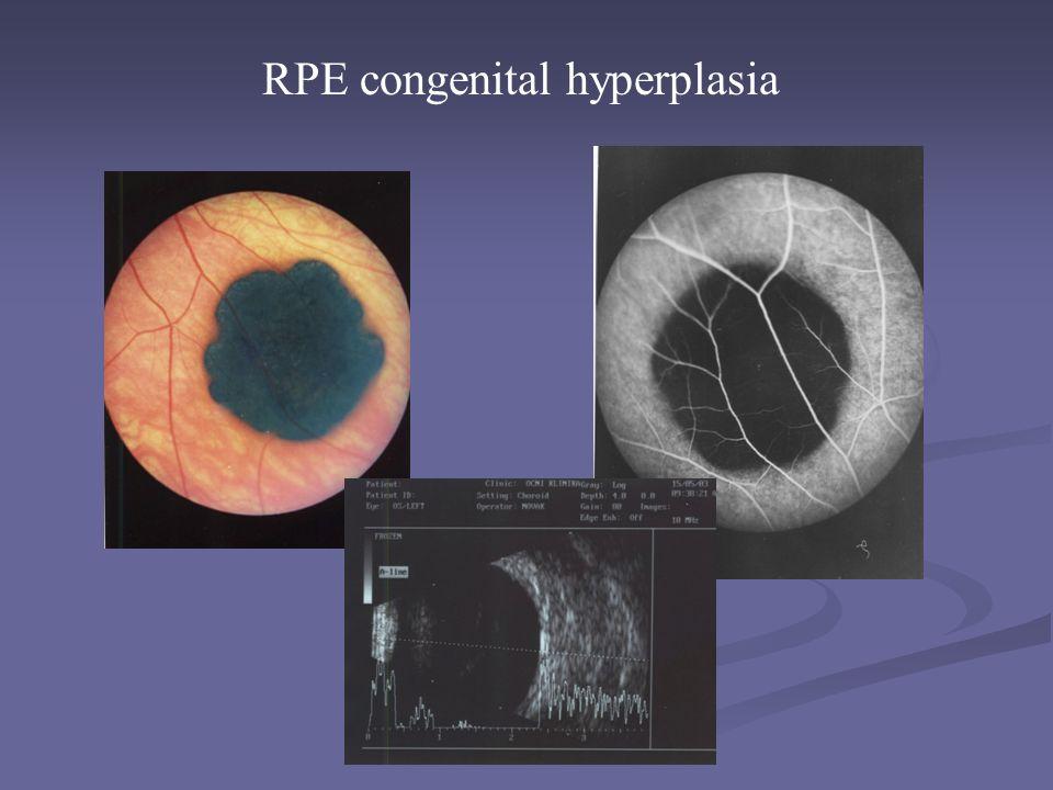 RPE congenital hyperplasia