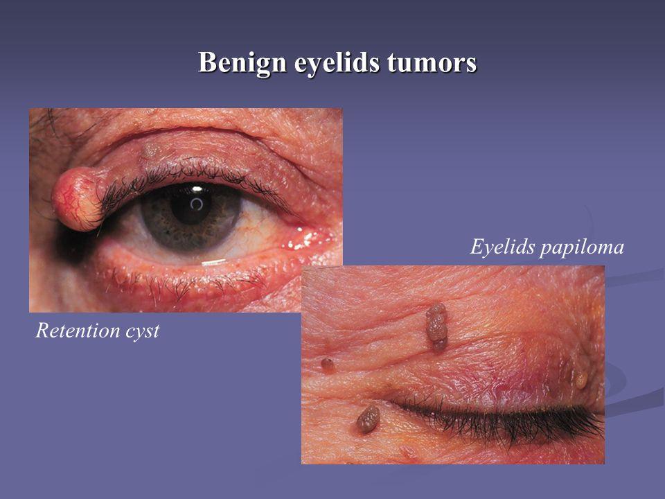 Benign eyelids tumors Retention cyst Eyelids papiloma