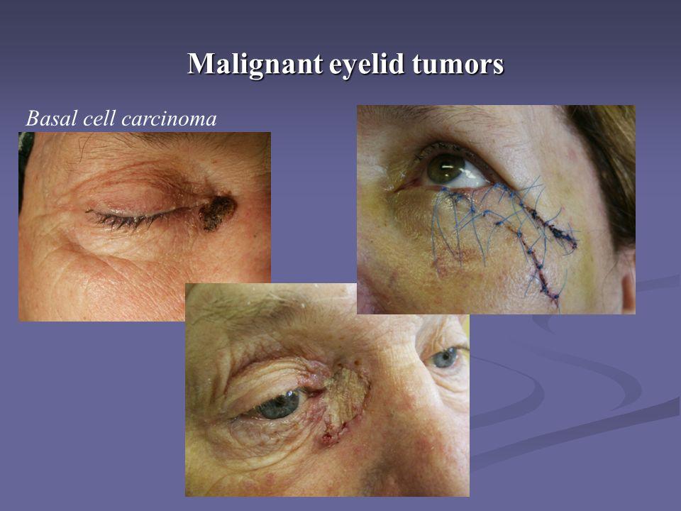 Malignant eyelid tumors Basal cell carcinoma