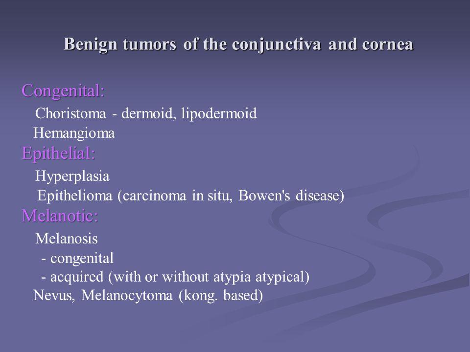 Benign tumors of the conjunctiva and cornea conjunctival papilomaconjunctival lipodermoid conjunctival lymfangioma