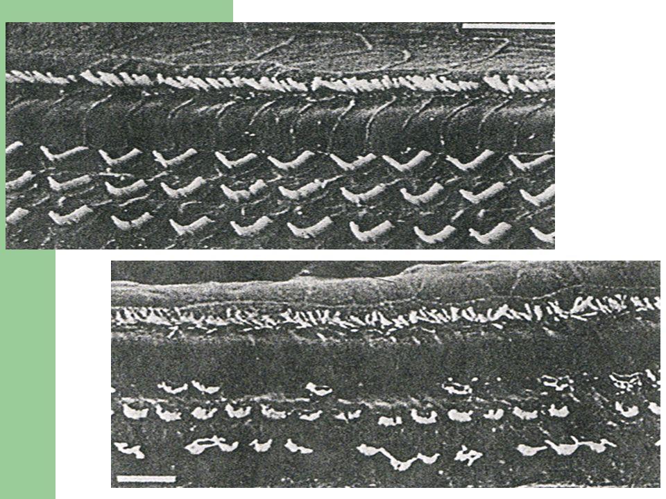 Závěr Existence regenerace sluchových buněk je prokázaná – ne u savců.