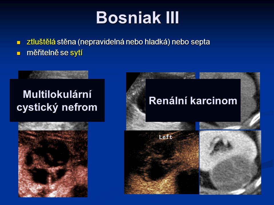 Bosniak III ztluštělá stěna (nepravidelná nebo hladká) nebo septa ztluštělá stěna (nepravidelná nebo hladká) nebo septa měřitelně se sytí měřitelně se