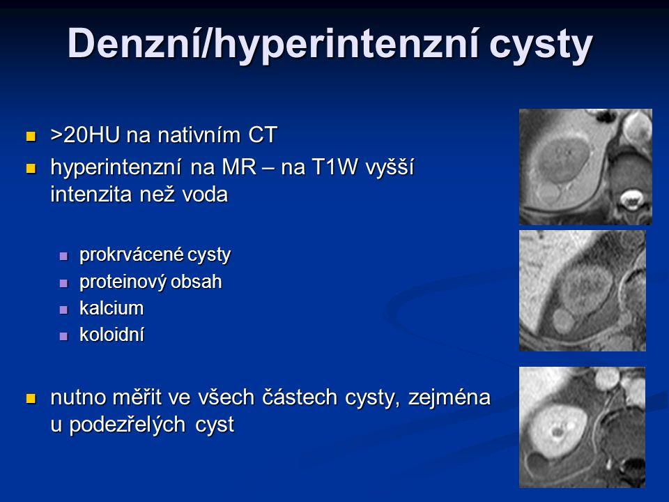 Denzní/hyperintenzní cysty >20HU na nativním CT >20HU na nativním CT hyperintenzní na MR – na T1W vyšší intenzita než voda hyperintenzní na MR – na T1