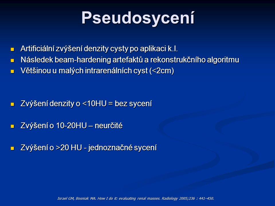 Pseudosycení Artificiální zvýšení denzity cysty po aplikaci k.l. Artificiální zvýšení denzity cysty po aplikaci k.l. Následek beam-hardening artefaktů