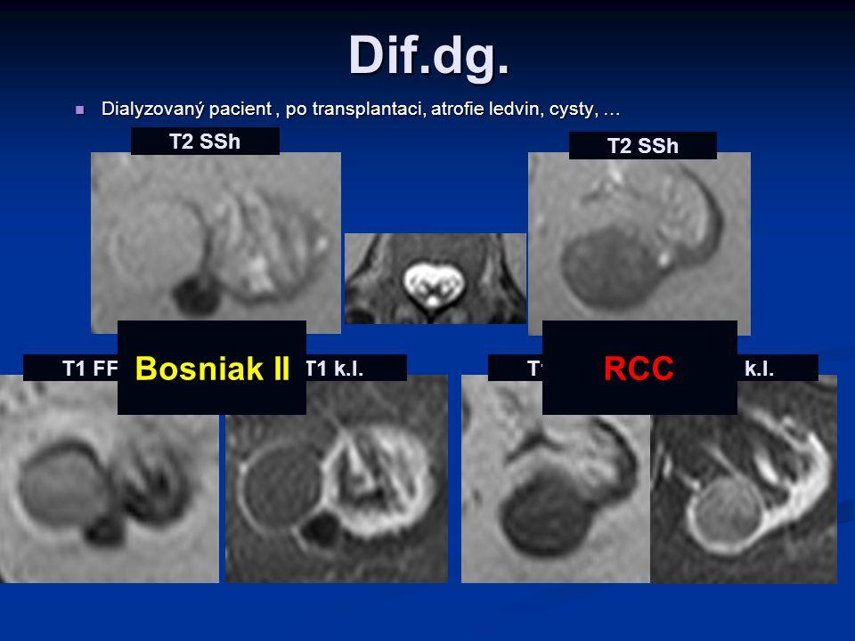 Dif.dg. Dialyzovaný pacient, po transplantaci, atrofie ledvin, cysty, … Dialyzovaný pacient, po transplantaci, atrofie ledvin, cysty, … T2 SSh T1 FFE