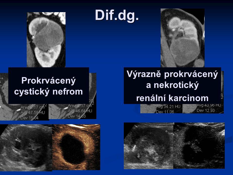 Dif.dg. Prokrvácený cystický nefrom Výrazně prokrvácený a nekrotický renální karcinom