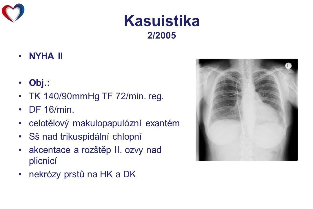 Kasuistika 2/2005 NYHA II Obj.: TK 140/90mmHg TF 72/min. reg. DF 16/min. celotělový makulopapulózní exantém Sš nad trikuspidální chlopní akcentace a r
