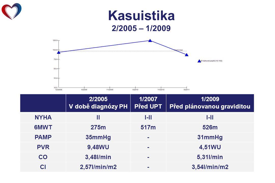 Kasuistika 2/2005 – 1/2009 Terapie: Warfarin, Tracleer 125 mg 2xdenně 2/2005 V době diagnózy PH 1/2007 Před UPT 1/2009 Před plánovanou graviditou NYHAIII-II 6MWT275m517m526m PAMP35mmHg-31mmHg PVR9,48WU-4,51WU CO3,48l/min-5,31l/min CI2,57l/min/m2-3,54l/min/m2