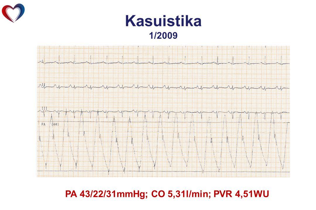 Kasuistika 1/2009 PA 43/22/31mmHg; CO 5,31l/min; PVR 4,51WU
