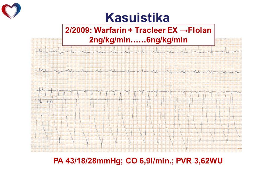 PA 43/18/28mmHg; CO 6,9l/min.; PVR 3,62WU Kasuistika 1/2009 2/2009: Warfarin + Tracleer EX →Flolan 2ng/kg/min……6ng/kg/min