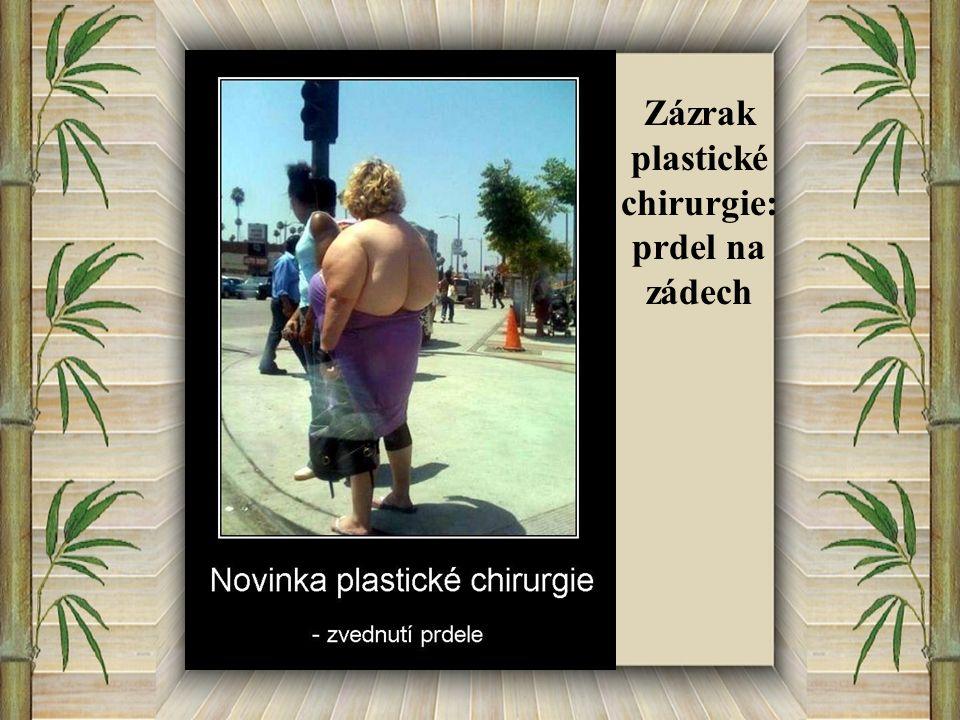 Zázrak plastické chirurgie: prdel na zádech