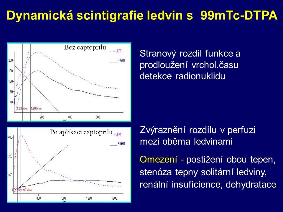 Dynamická scintigrafie ledvin s 99mTc-DTPA Bez captoprilu Po aplikaci captoprilu Stranový rozdíl funkce a prodloužení vrchol.času detekce radionuklidu Zvýraznění rozdílu v perfuzi mezi oběma ledvinami Omezení - postižení obou tepen, stenóza tepny solitární ledviny, renální insuficience, dehydratace
