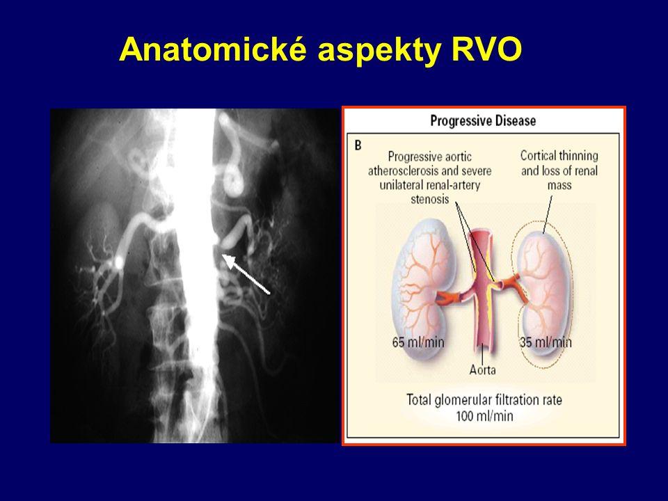 Anatomické aspekty RVO