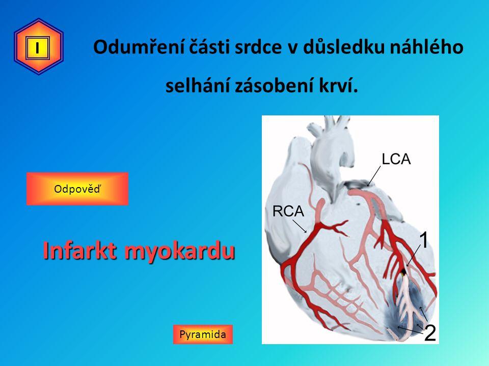 Pyramida Infarkt myokardu Odpověď I Odumření části srdce v důsledku náhlého selhání zásobení krví.