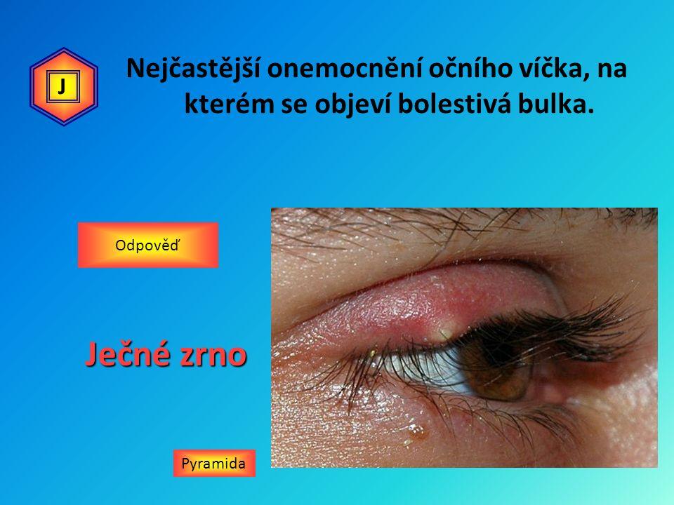 Nejčastější onemocnění očního víčka, na kterém se objeví bolestivá bulka. Pyramida Odpověď Ječné zrno J