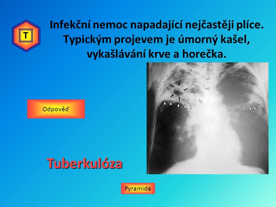 Infekční nemoc napadající nejčastěji plíce. Typickým projevem je úmorný kašel, vykašlávání krve a horečka. Pyramida OdpověďTuberkulóza T