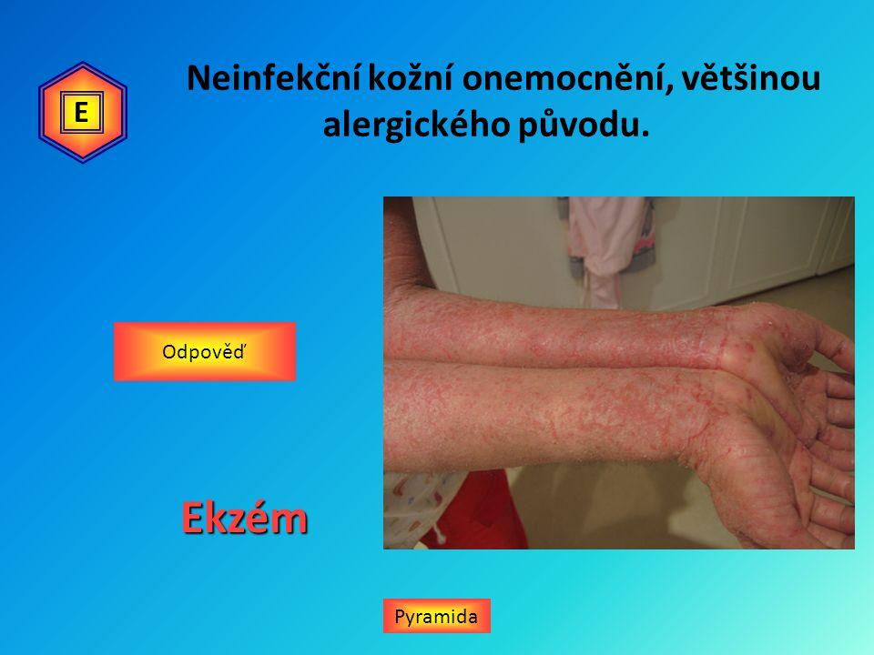 Porucha přeměny látek v těle – dusíkaté zplodiny nejsou odbourány a usazují se v kloubech, jiným názvem pakostnice.