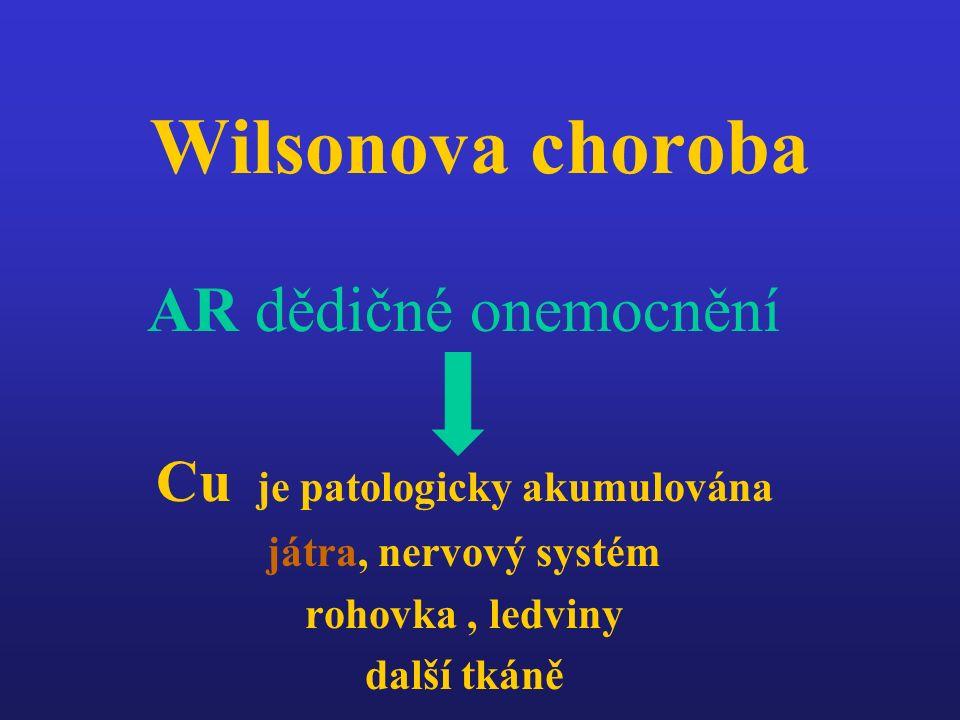 Wilsonova choroba AR dědičné onemocnění Cu je patologicky akumulována játra, nervový systém rohovka, ledviny další tkáně