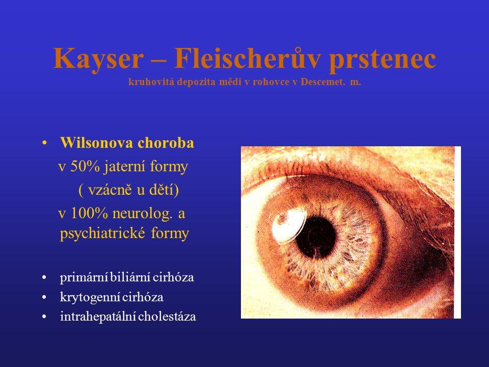 Kayser – Fleischerův prstenec kruhovitá depozita mědi v rohovce v Descemet. m. Wilsonova choroba v 50% jaterní formy ( vzácně u dětí) v 100% neurolog.