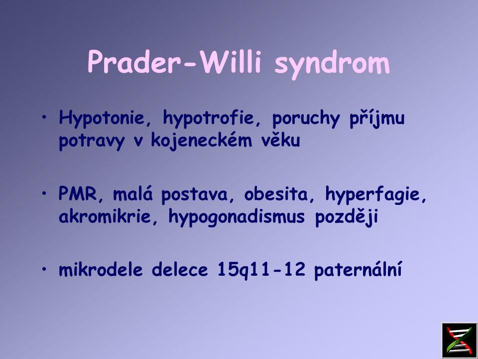 Prader-Willi syndrom Snížená aktivita plodu  Neprospívání kojenců  Hypotonie novorozenců  Obesita  Hyperfagie, neukojitelný hlad  Hypogenitalismus, hypogonadismus  PMR  Malá postava  Akromikrie  Hypopigmentace  Problémy s chováním