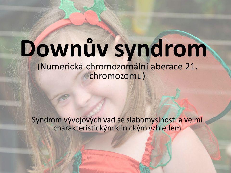 Downův syndrom (Numerická chromozomální aberace 21. chromozomu) Syndrom vývojových vad se slabomyslností a velmi charakteristickým klinickým vzhledem